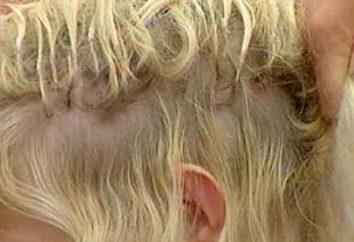 ¿Soñaste que tu pelo se cayó? La interpretación de los sueños dirá el significado