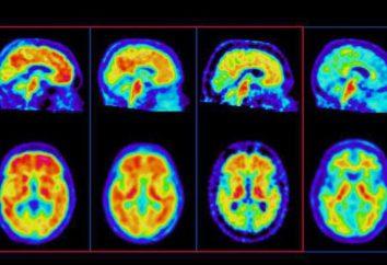 Psycho – chi è questo? Disturbo di personalità: sintomi, trattamento, Tipi