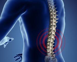 Spondylose de la colonne vertébrale lombaire: causes, symptômes et traitements