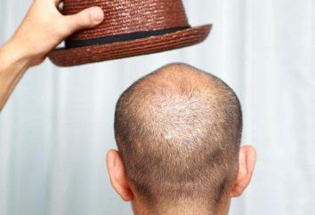 Le meilleur remède pour la perte de cheveux: lotions. Examen, fabricants, composition et commentaires