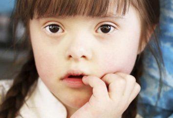 Kind nach unten – was bedeutet es? Anzeichen und Symptome des Down-Syndroms