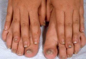 Les fonds provenant de la mycose des ongles sur vos pieds: prévention et le traitement