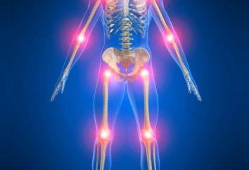 Les causes de l'arthrite et le traitement des maladies. L'arthrite infectieuse: Causes