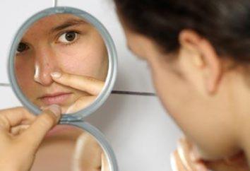 Die Ursachen der Seborrhoe auf dem Gesicht