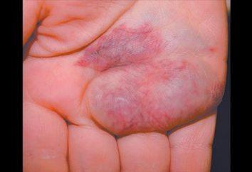 Hygroma stóp. Rodzaju nowotworów i sposobów leczenia