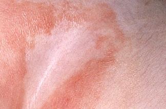 erytheme fessier adulte traitement