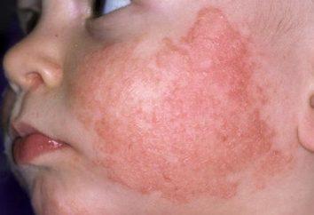 rash facial em crianças: causas de