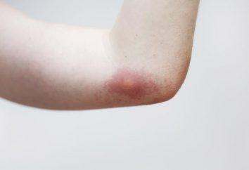 remedios caseros para profesionales y las picaduras de mosquitos. Lo que ayuda de verdad?