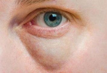 Opuchlizna pod okiem: Powoduje. Z jednej strony opuchlizna pod okiem rano: rozpoznanie i eliminację przyczyn obrzęku
