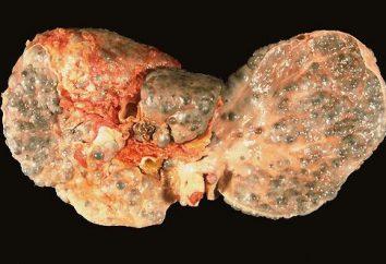 Zirrhose. Wie mit dieser Diagnose zu leben?