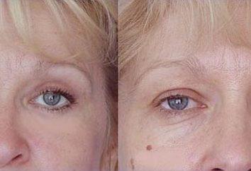 Was ist ein blepharoplasty der oberen Augenlider?