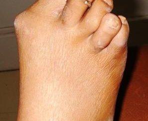 Toe Artrite: cause, sintomi
