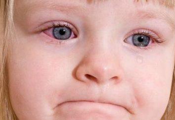 Síntomas y tratamiento de la conjuntivitis en un niño