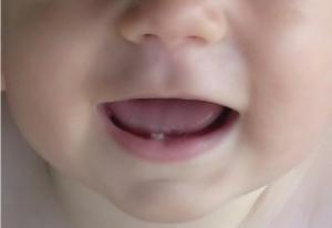 Como ajudar quando o bebê dentição