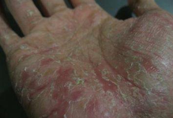 Jak leczyć egzemę na rękach i co to jest?