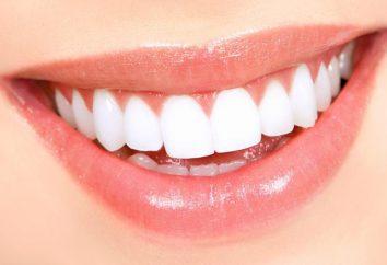 Nombre de los dientes en los seres humanos. los dientes del título (esquema). Los nombres de los dientes de leche