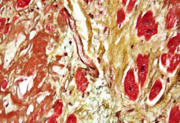 Amiloidose – o que é? Amiloidose: causas, sintomas, tratamento, diagnóstico