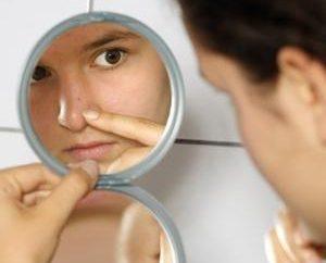 Najbardziej proste i skuteczne maski na trądzik