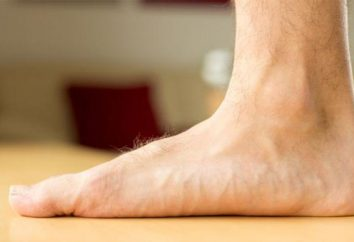 Esercizi per i piedi piatti. solette ortopediche per i piedi piatti