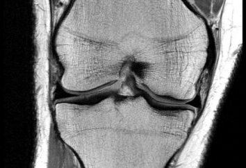 gamba malattia articolare: i metodi di trattamento e la prevenzione