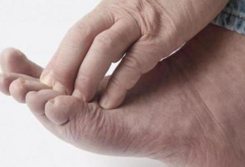 Que dois-je faire si mes orteils démangeaisons? Les causes de démangeaisons
