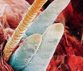 Les gens d'acariens sous-cutanés. L'infection et le traitement