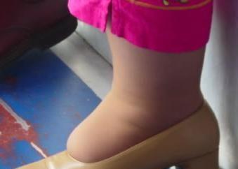 Si los zapatos demasiado apretados: qué hacer y cómo ser?