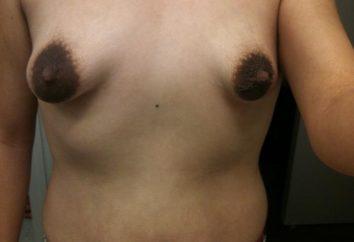 Was ist eine röhrenförmige Brust und wie es aussieht?