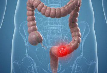 Gruczolakorak esicy: przyczyny, objawy, leczenie i rokowanie