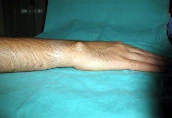 poignet Hygroma: traitement sans remèdes populaires de chirurgie (commentaires)