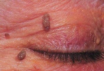 Celidonia de papilomas. solicitud