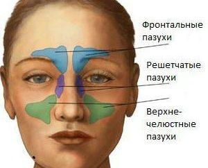 Ostre zapalenie zatok: objawy. Leczenie ostrego zapalenia zatok