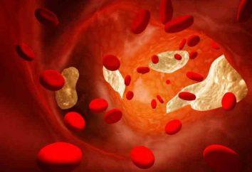 Jak pozbyć się cholesterolu? Jak czyścić naczynia z cholesterolu?