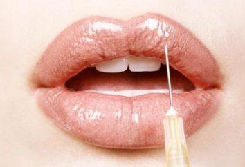 Ile kosztuje powiększanie ust? Metody korekty i ich koszt