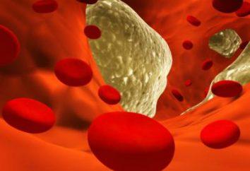 cholesterol LDL jest zwiększona: jak je zmniejszyć, a co jest normą?