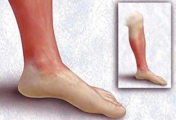 Erisipela na perna (erisipela da perna). remédios populares: tratamento. pernas erisipela: Sintomas e Tratamento de remédios populares (própolis, conspiração, bandeira vermelha)