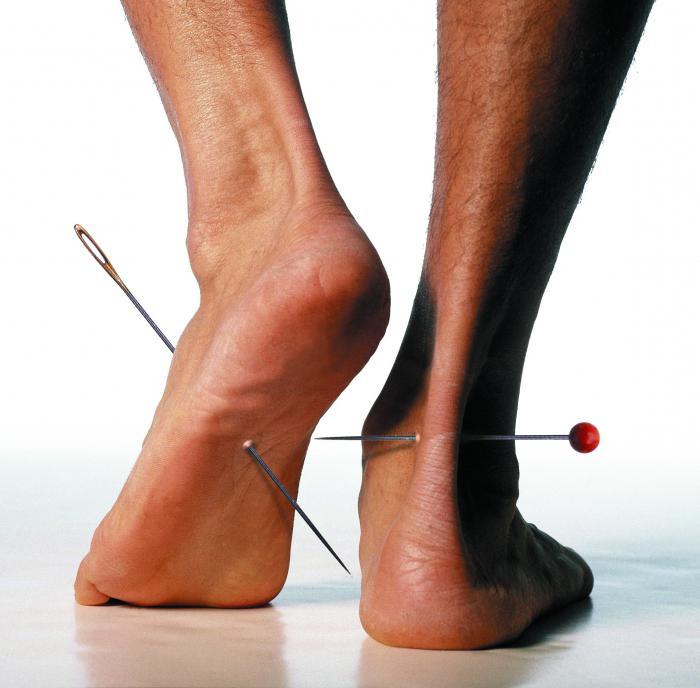 pieds engourdis et fourmillements