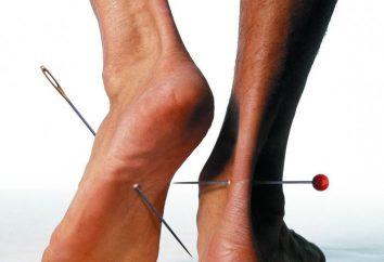 Mrowienie i drętwienie rąk i stóp: Przyczyny