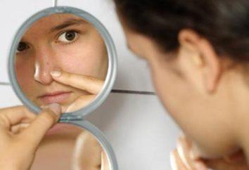 Moyens « Skinoren » (gel) dans la lutte contre l'acné