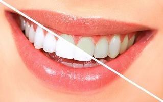 Il segreto di un sorriso bianco come la neve: olio di tea tree per lo sbiancamento dei denti