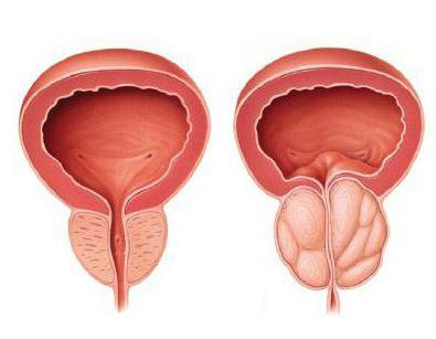 prostatakrebs operation folgen