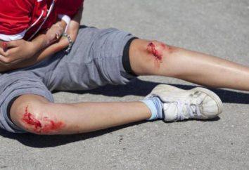 Otworzyć ranę na nodze i ramię nie leczyć. leczenie ran. Czym jest rana?