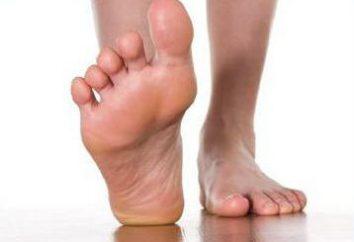 Que faire si les bandes de frottement de chaussures: Conseils simples