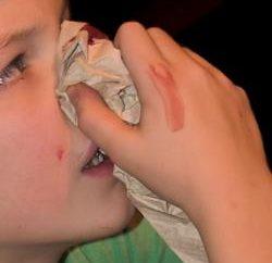 Traumdeutung, erklären uns: Was träumt das Blut aus der Nase?