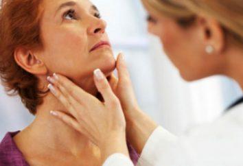 Hay que saber cómo hacerse la prueba de hormonas tiroideas. análisis de los precios de las hormonas tiroideas