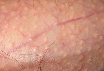 Fox-Fordyce choroba – objawy, przyczyny, leczenie