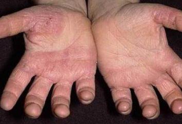 Dlaczego grzyb skóra na dłoniach i jak ją leczyć?