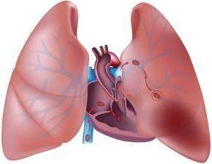 coaguli di sangue nei polmoni. Embolia polmonare: cause, sintomi, conseguenze, il trattamento