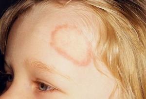 Microsporia na criança: sintomas, tratamento, recomendações