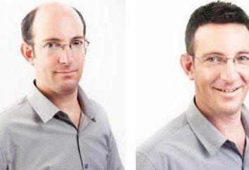 Le clonage des cheveux: une nouvelle méthode de traiter la perte de cheveux